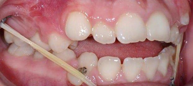 Bolardai-ortodontinis gydymas