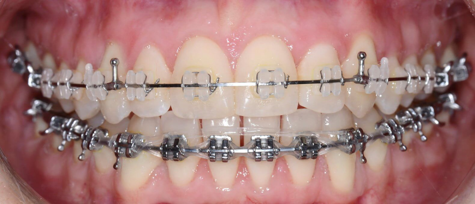 Keramikiniai breketai-ortodontinis gydymas