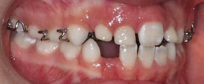 Plokštėlė-vaikų ortodontinis gydymas