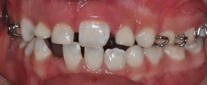 Plokštelė-vaikų ortodontinis gydymas