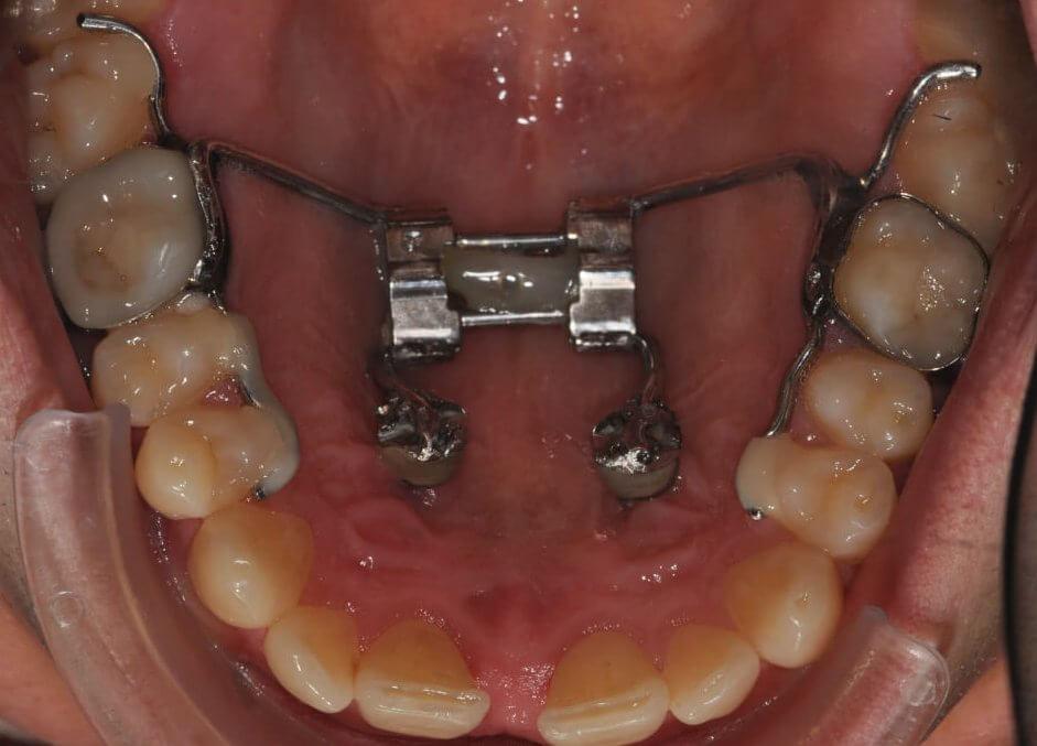 Gomurio plėtimo aparatas-vaikų ortodontinis gydymas