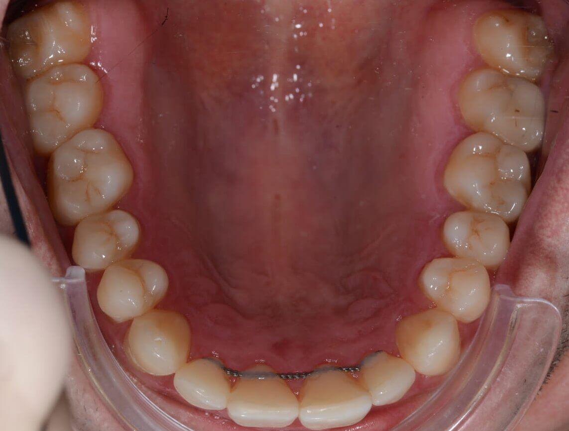 Stabilus rezultatas po ortodontinio gydymo