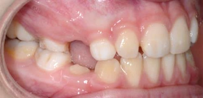 vaikų ortodontinis gydymas