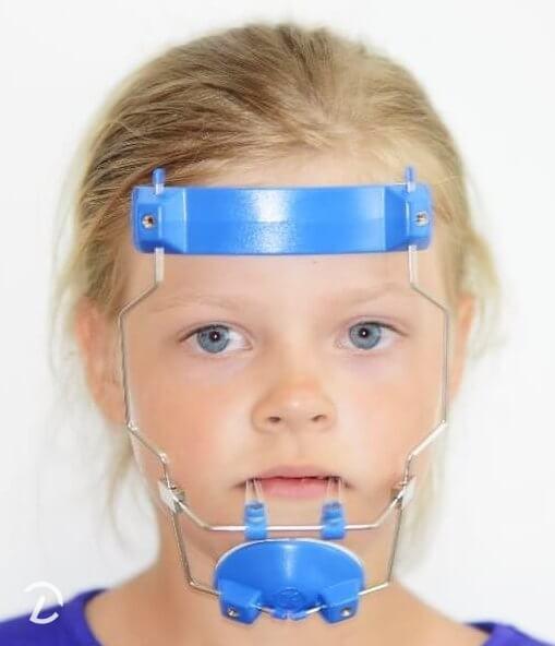 Ortodontinė veido kaukė